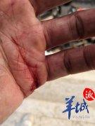 广州市民被外卖电动车撞倒多处受伤 骑